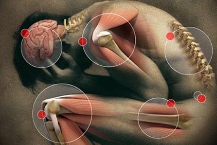 Zonas afectadas por la fibromialgia